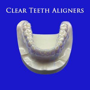Clear teeth aligners