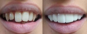 Before and after click in smile