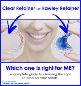 Retainer Guide
