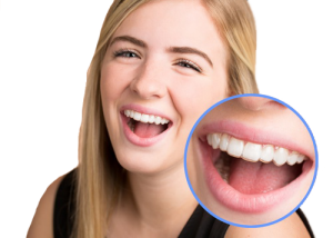 Review Retainer