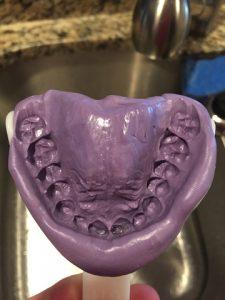 Teeth Impression