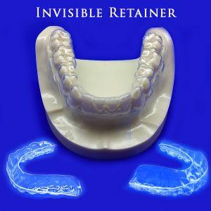 Invisible Retainer
