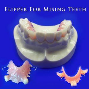 Flipper For Mising Teeth