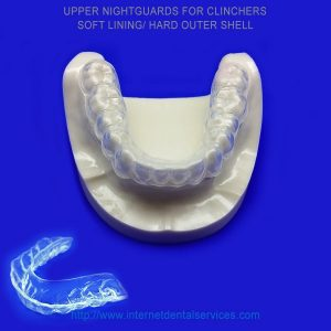 Upper Nightguards For Clinchers
